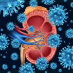Kidney infection concept