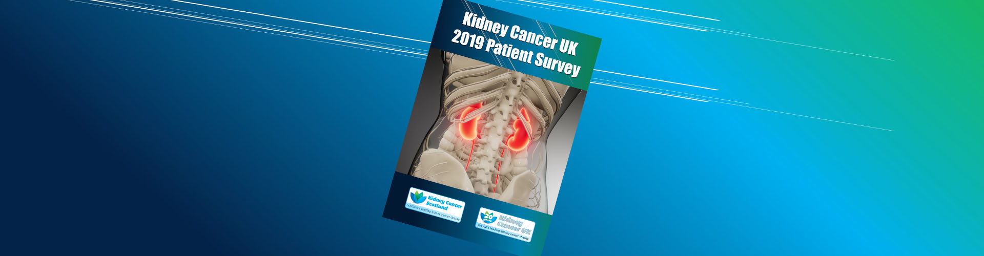 Kidney Cancer UK 2019 Patient Survey